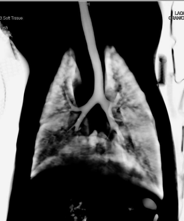Emma the Dog - CTisus CT Scanning