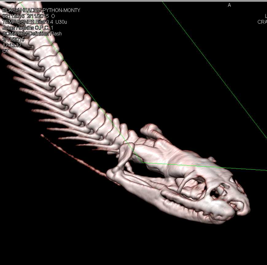 Python by the Name of Monty - CTisus CT Scanning