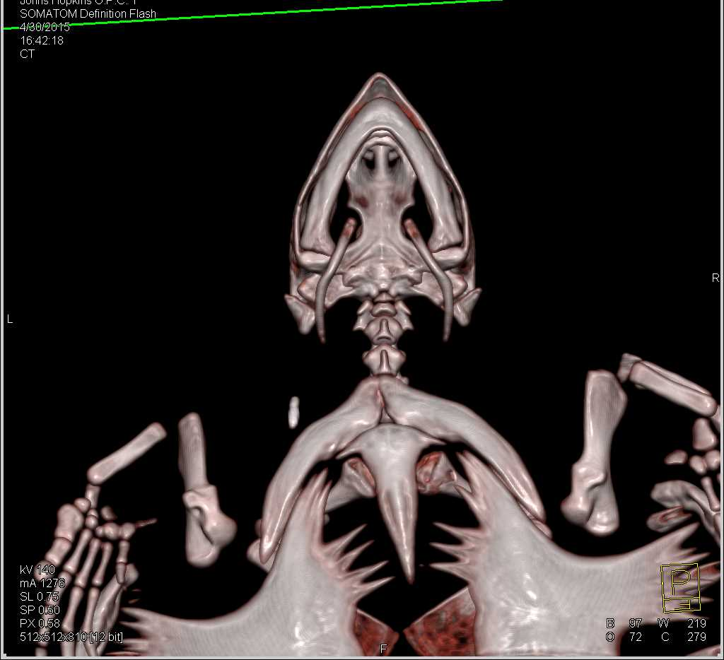Chronic Osteomyelitis Right Humerus in a Turtle - CTisus CT Scanning