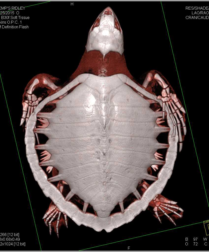 Ridleys Turtle with Dilated Esophagus - CTisus CT Scanning