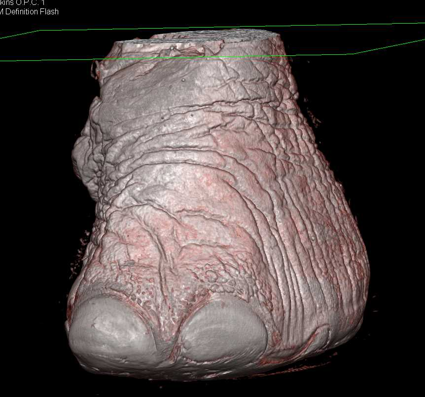 Elephant Foot in 3D - CTisus CT Scanning
