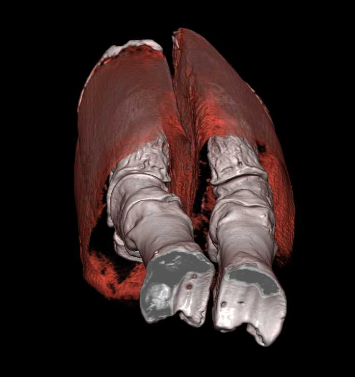 CT of Elephants Feet - CTisus CT Scanning