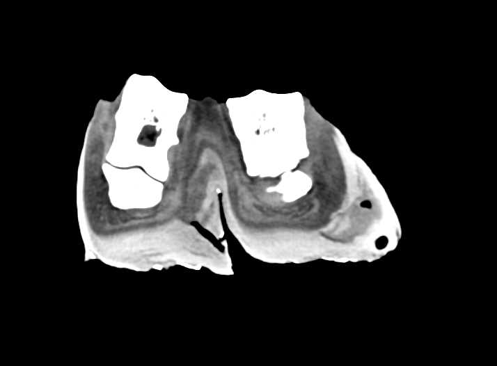 Elephant Ankle and Foot - CTisus CT Scanning
