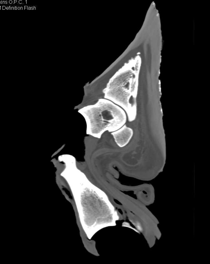 Elephant & Giraffe Ankle and Foot - CTisus CT Scanning