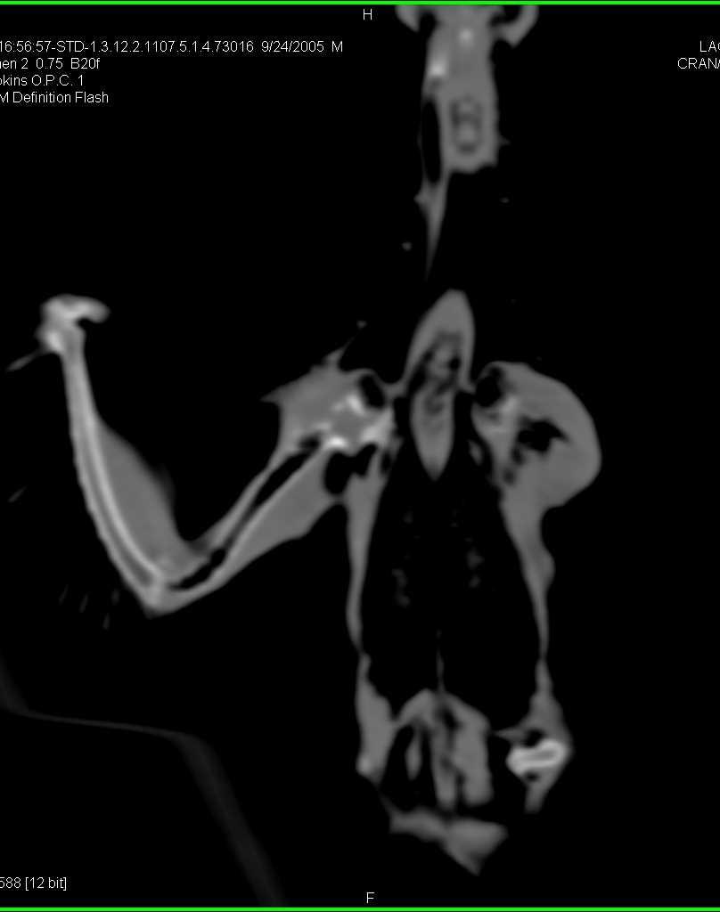 Intubated Bird in 3D - CTisus CT Scanning