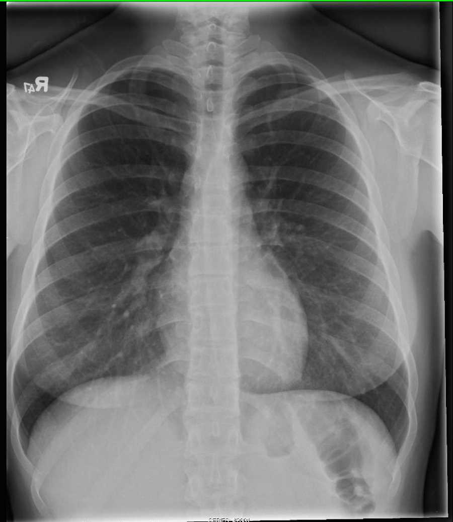 how to read ct chest