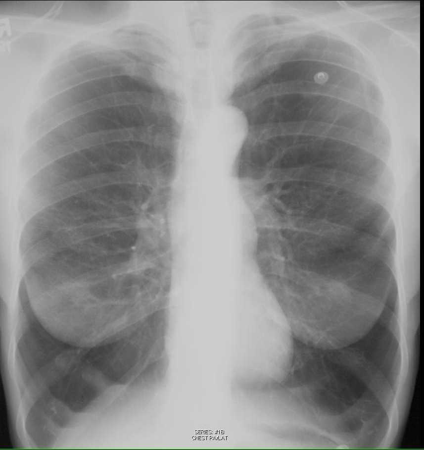 Emphysema on Chest X-ray