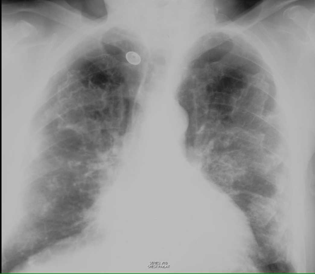 Calcified Pleural Plaques on Chest X-ray