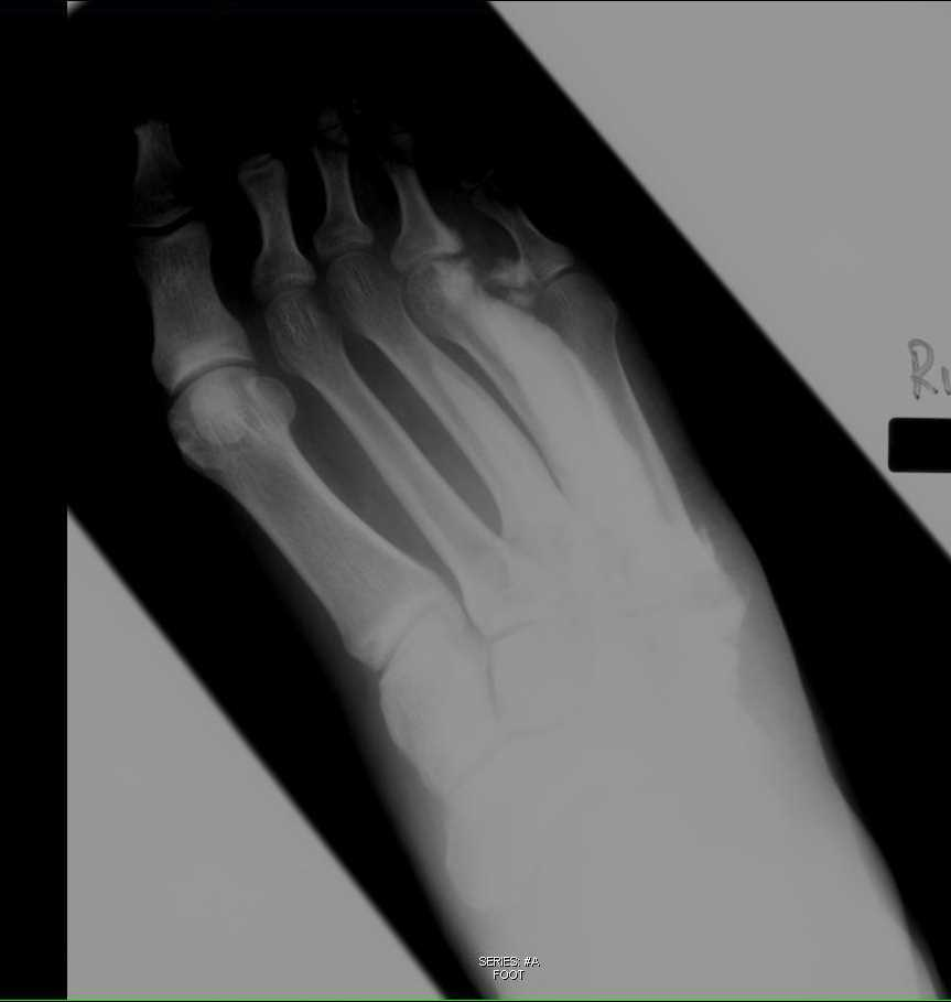 Melorheostosis Foot on X-ray